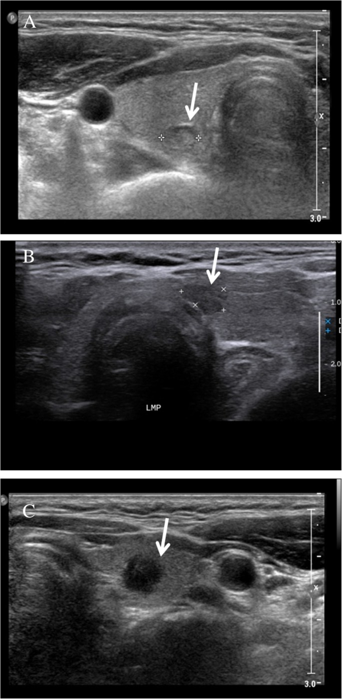 Ultrasonographic Findings Relating To Lymph Node Metastasis In