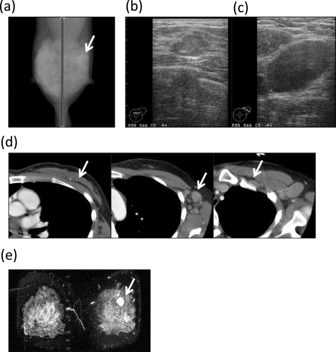 A case of invasive micropapillary carcinoma of the breast
