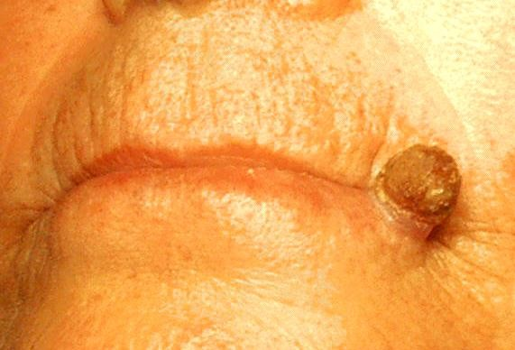 Cutaneous horns: are these lesions as innocent as they seem to be