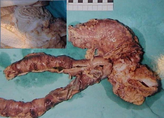 Carcinoma Of Sigmoid Colon Following Urinary Diversion A Case Report And Review Of Literature World Journal Of Surgical Oncology Full Text