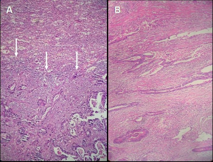 Isolated Metachronous Splenic Metastasis From Synchronous Colon Cancer World Journal Of Surgical Oncology Full Text