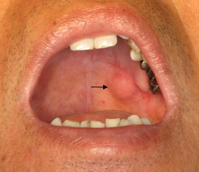 pleomorphic adenoma palate Népi kezelések Prostatitis