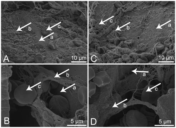 Thrombin based gelatin matrix and fibrin sealant mediated