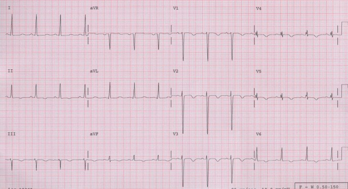 An unusual case of peripartum cardiomyopathy manifesting