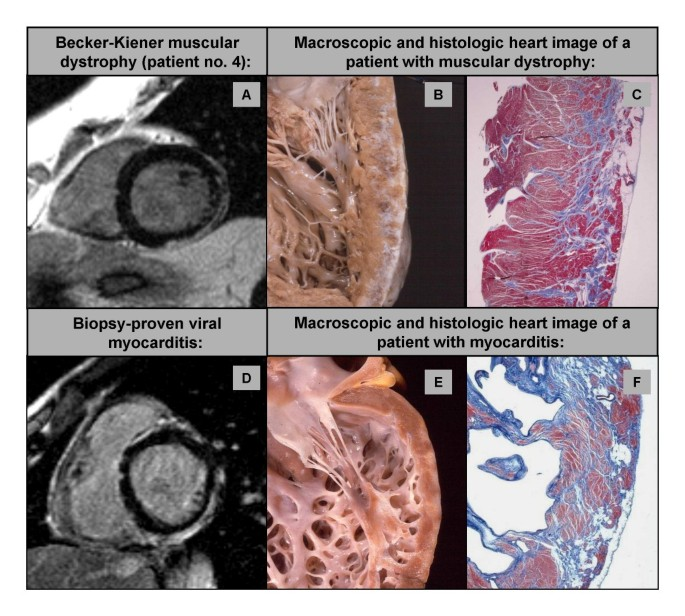 Cardiac involvement in patients with Becker muscular