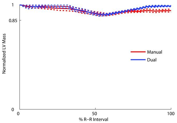 A dual propagation contours technique for semi-automated ...