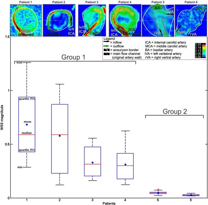 Characterization of cerebral aneurysms using 4D FLOW MRI