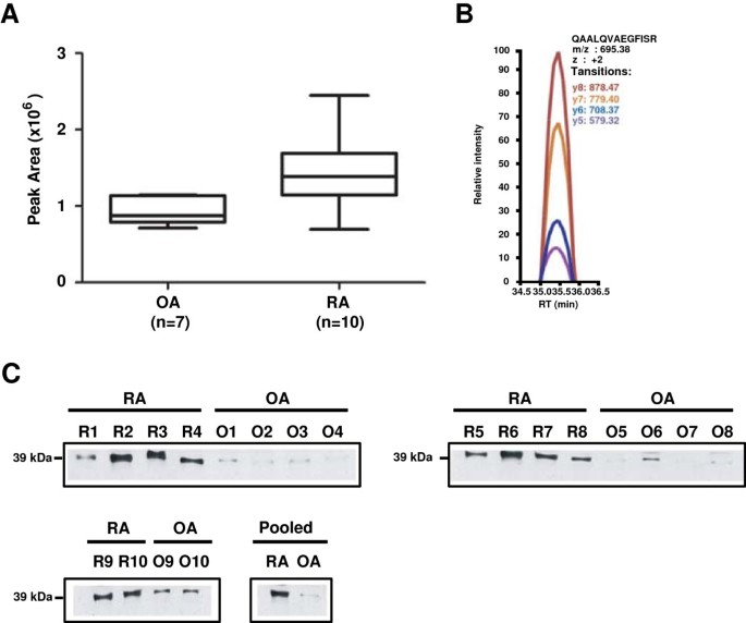 Differential proteomic analysis of synovial fluid from rheumatoid