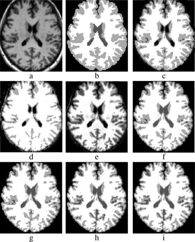 Tumor segmentation in brain MRI using a fuzzy approach with