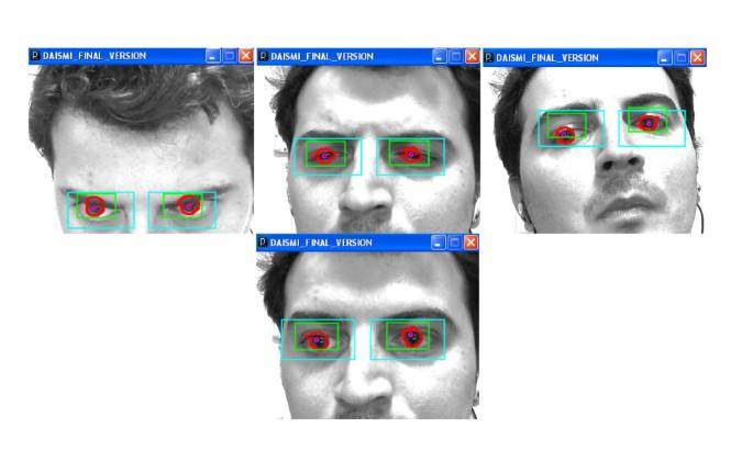 A 2D eye gaze estimation system with low-resolution webcam images