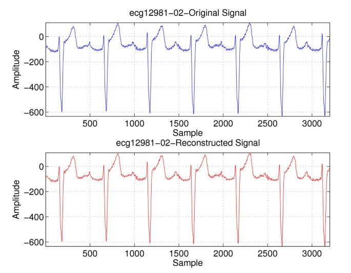 Compression of ECG signals using variable-length classifıed