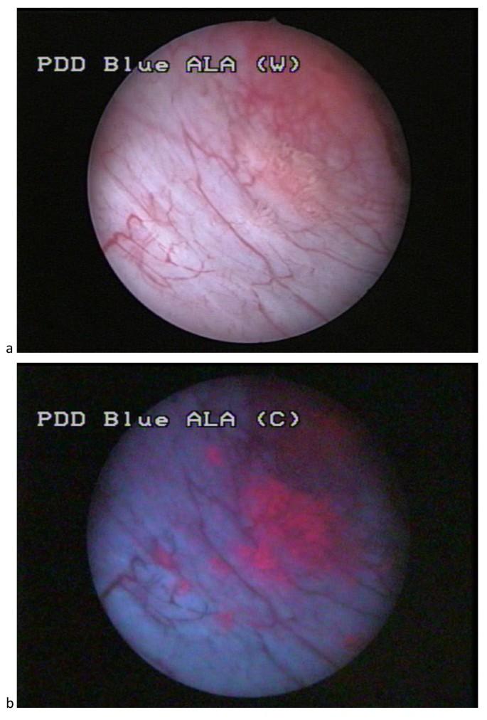 papillary lesion bladder nhs