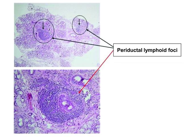 Novel aspects of Sjögren's syndrome in 2012 | BMC Medicine