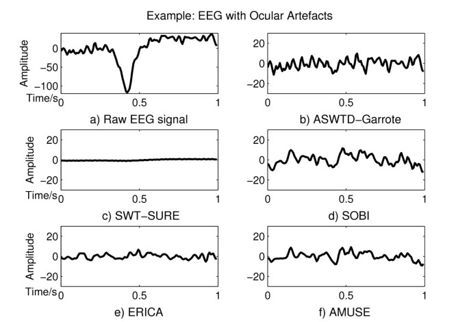 Eeg Signal Segmentation Matlab Code