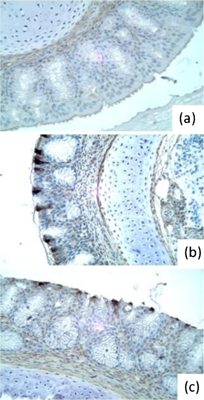 The pathogenicity of avian metapneumovirus subtype C wild
