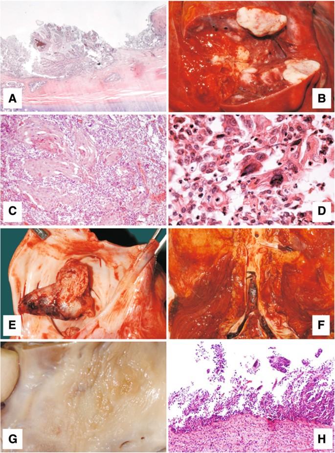 malignant transformation laryngeal papilloma)