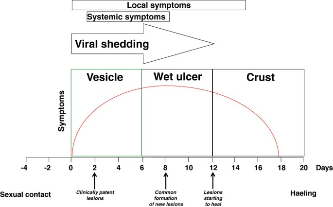 Diagnosis of genital herpes simplex virus infection in the clinical