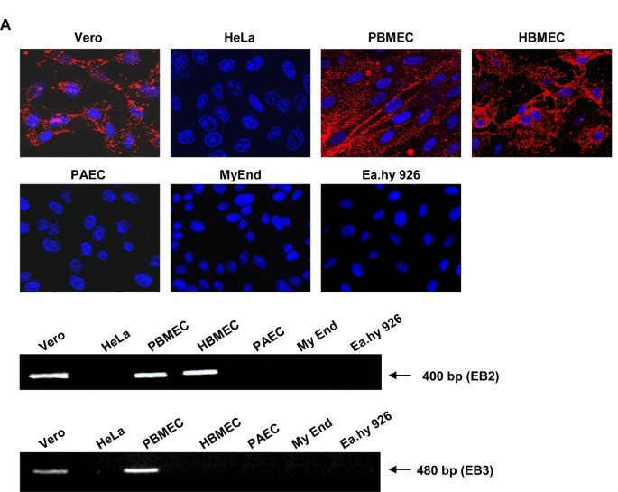 Selective receptor expression restricts Nipah virus infection of