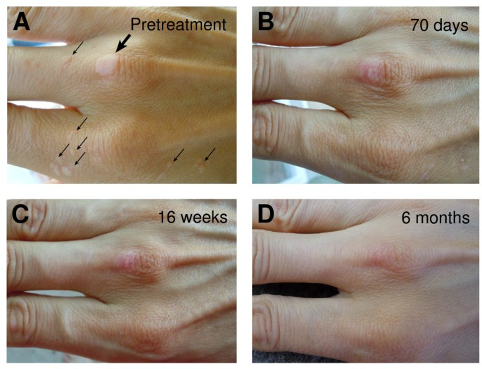 Topical vitamin A treatment of recalcitrant common warts