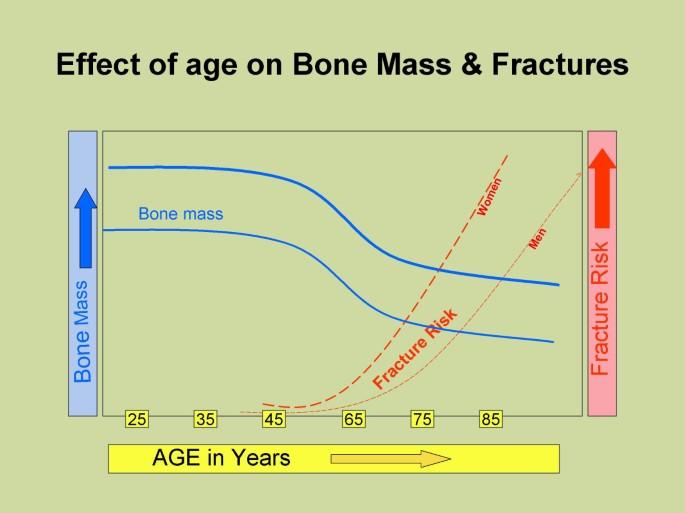 Antiepileptic drugs and bone metabolism   Nutrition & Metabolism
