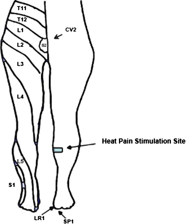 The effect of acupuncture needle combination on central pain