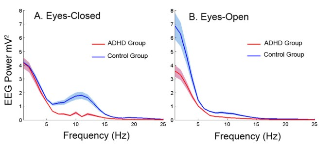The Debate Continues Adhd Serious >> Resting State Eeg Oscillatory Power Differences In Adhd