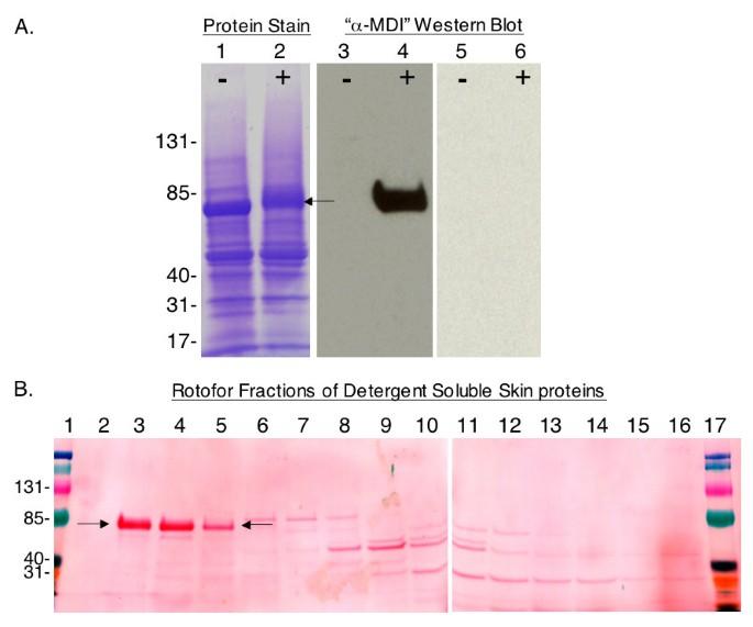 Immune sensitization to methylene diphenyl diisocyanate (MDI