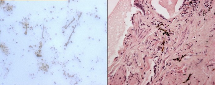 Mesothelioma and asbestosis in a young woman following