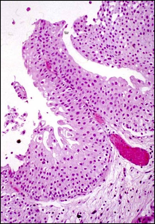 Atypical papillary urothelial hyperplasia