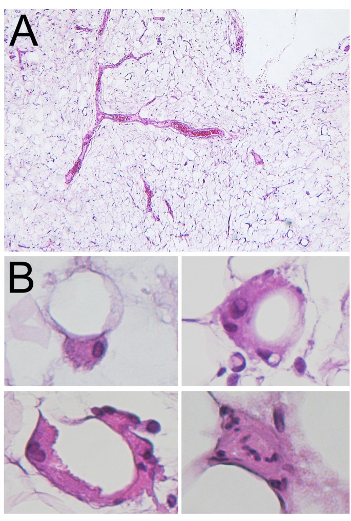 Malignant transformation of Madelung's disease in a patient
