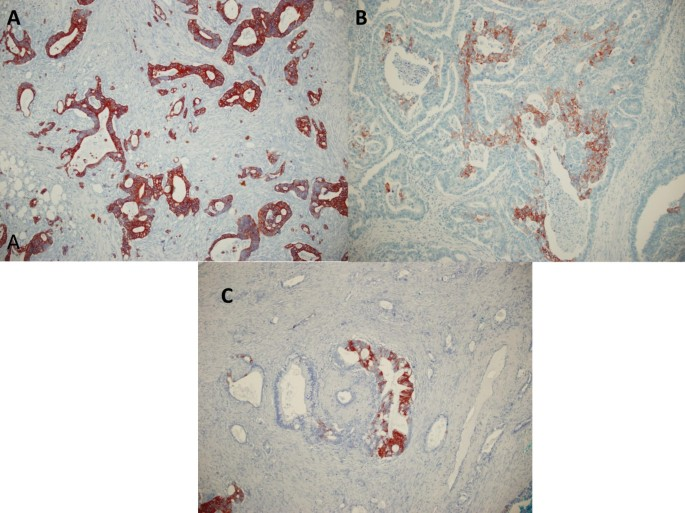 The Value Of Cdx2 And Cytokeratins 7 And 20 Expression In Differentiating Colorectal Adenocarcinomas From Extraintestinal Gastrointestinal Adenocarcinomas Cytokeratin 7 20 Phenotype Is More Specific Than Cdx2 Antibody Diagnostic Pathology Full Text