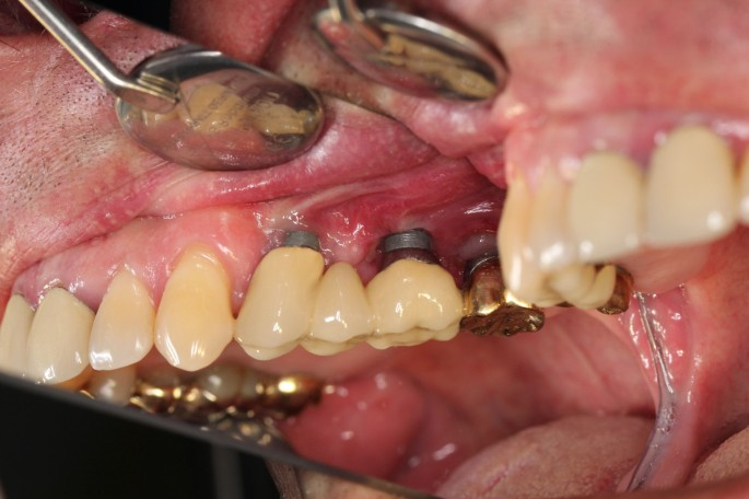 Definition, etiology, prevention and treatment of peri-implantitis ...