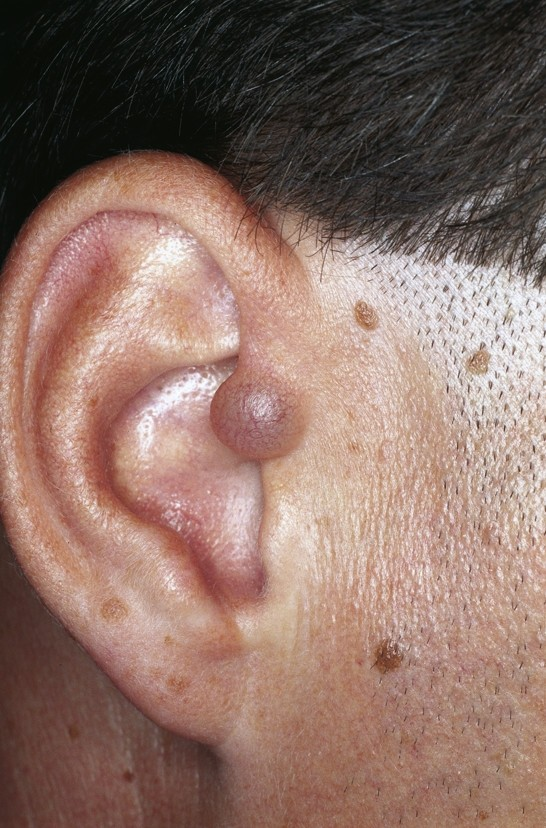 Cutaneous lesions of the external ear | Head & Face Medicine