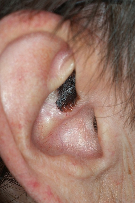 Cutaneous lesions of the external ear | Head & Face Medicine | Full Text