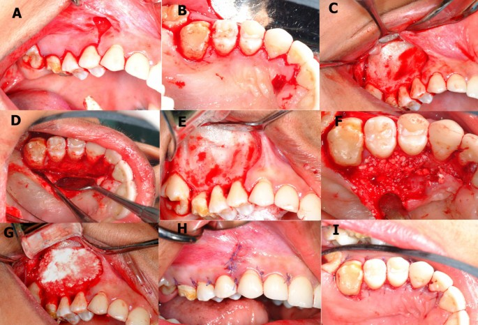 Unilateral cross bite treated by corticotomy-assisted