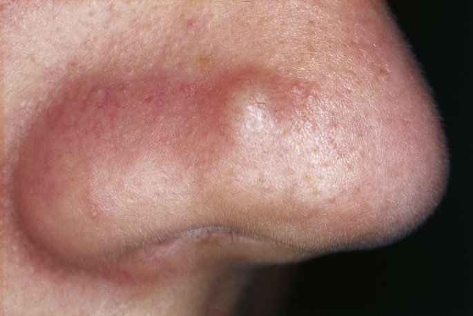 Cutaneous lesions of the nose   Head & Face Medicine   Full Text