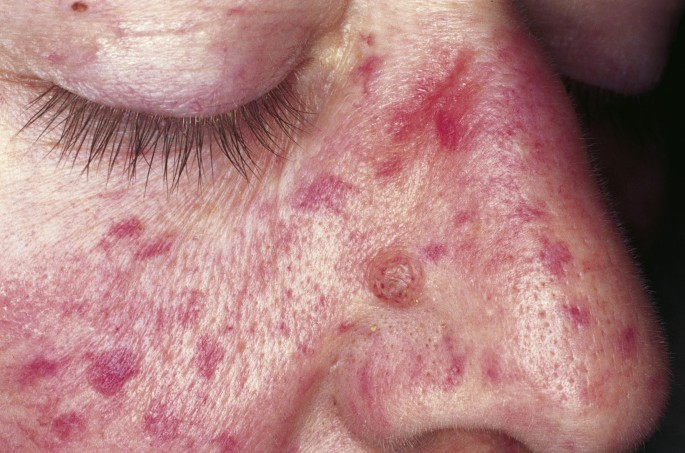 Cutaneous lesions of the nose | Head & Face Medicine | Full Text