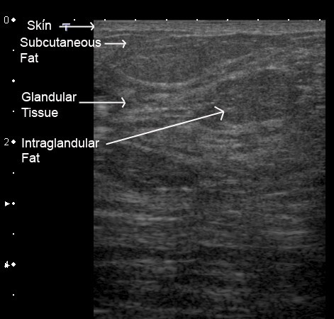 Ultrasound Imaging Of The Lactating Breast Methodology And