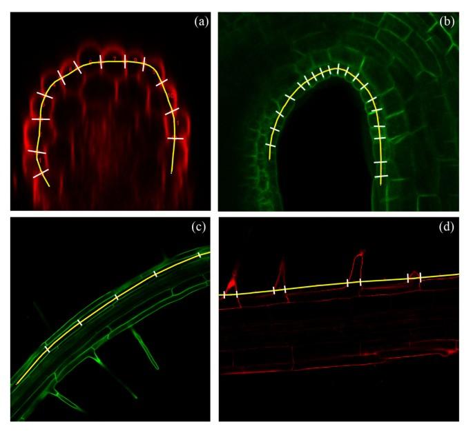 Identifying biological landmarks using a novel cell measuring ...