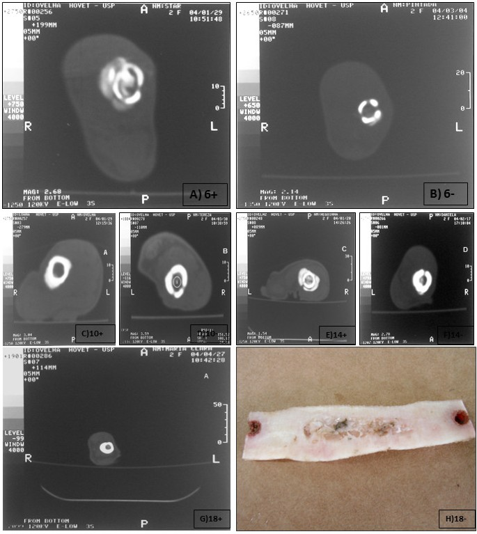 The effect of bone allografts combined with bone marrow