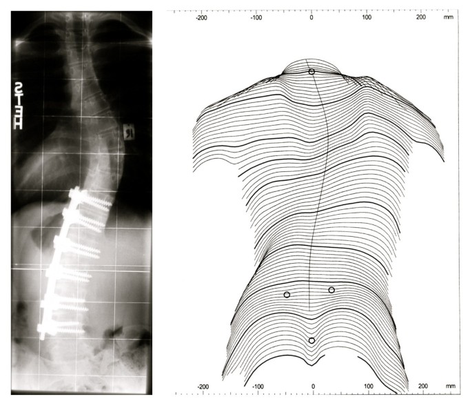 Rate of complications in scoliosis surgery – a systematic