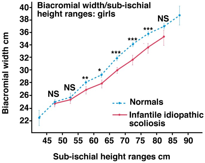 Pathogenesis of adolescent idiopathic scoliosis in girls - a double