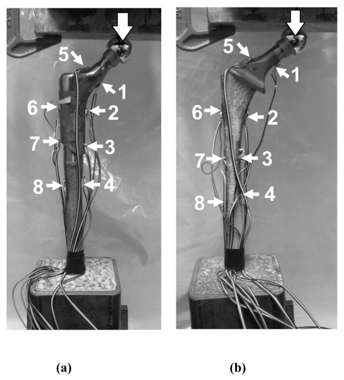 A biomechanical assessment of modular and monoblock revision