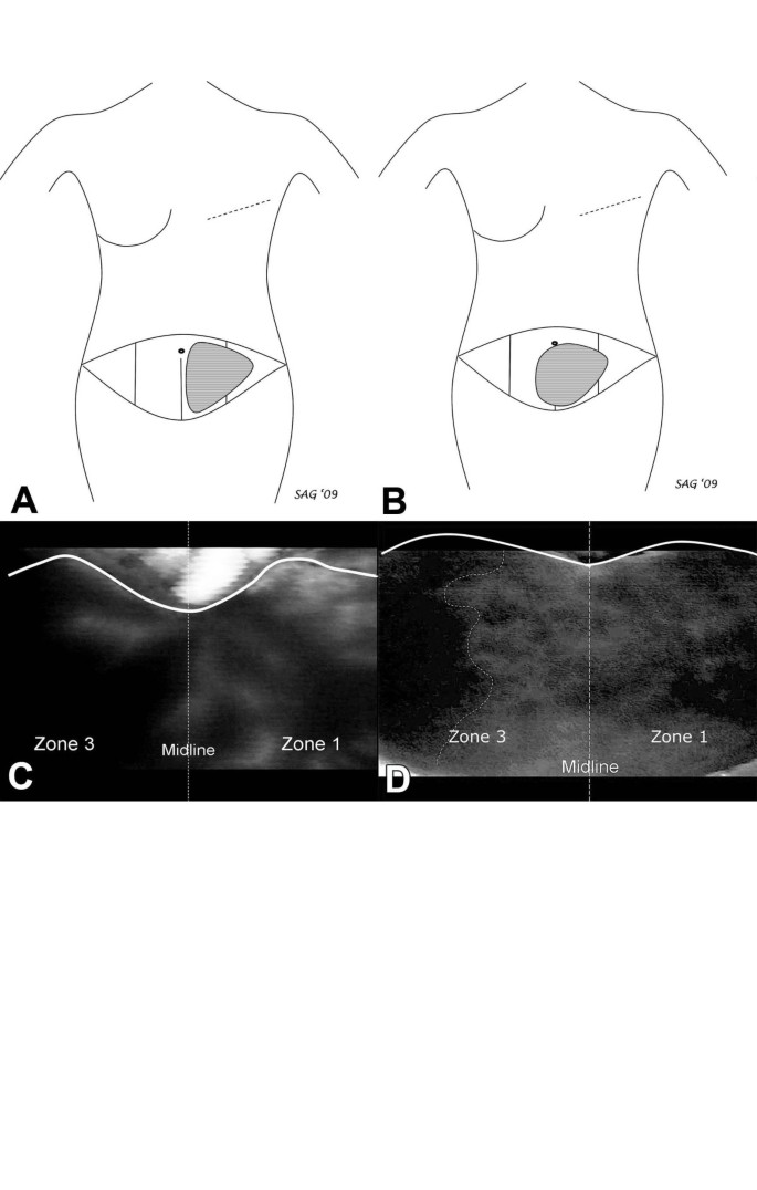 Intraoperative laser angiography using the SPY system