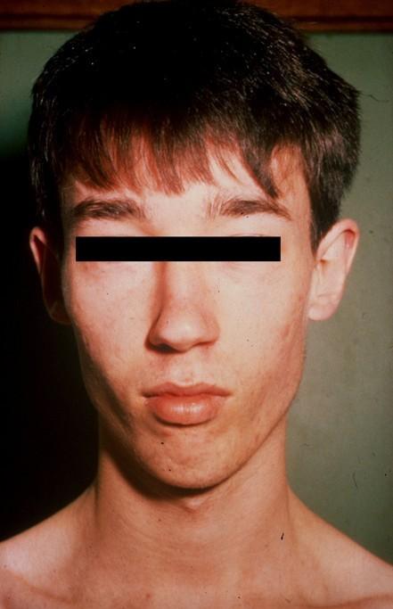 Lujan-Fryns syndrome (mental retardation, X-linked
