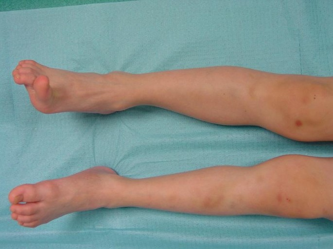 Ehlers-Danlos syndrome type IV | Orphanet Journal of Rare