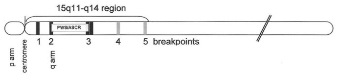 The inv dup (15) or idic (15) syndrome (Tetrasomy 15q