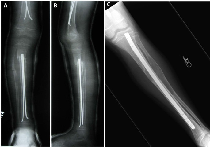 The surgical management of fibrous dysplasia of bone