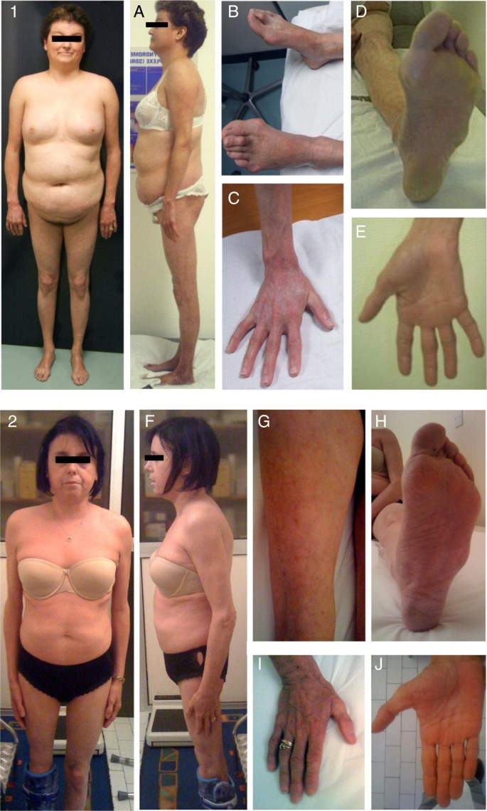 Partial lipodystrophy with severe insulin resistance and