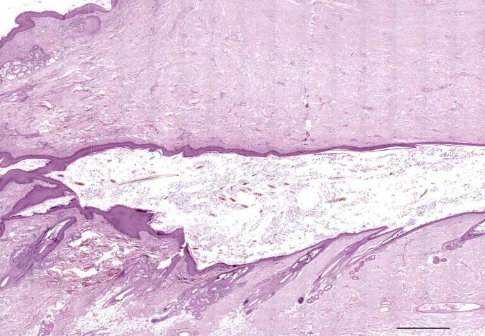 Multiple dermoid sinuses of type Vb and IIIb on the head of